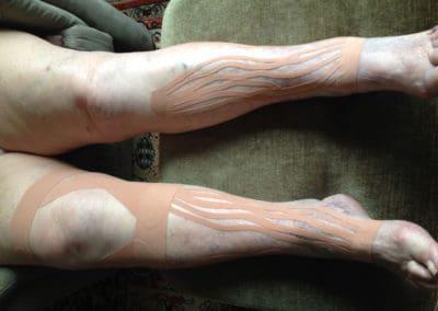 Kinesio-Taping - Knietape zur Stabilisierung bei Arthrose